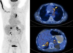 PET-CT - Vereos Digital PET-CT clinical image